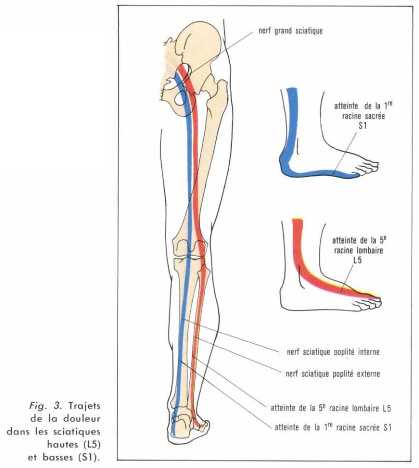 Populaire La sciatique | Albane Rullier ostéopathe D.O. SV29